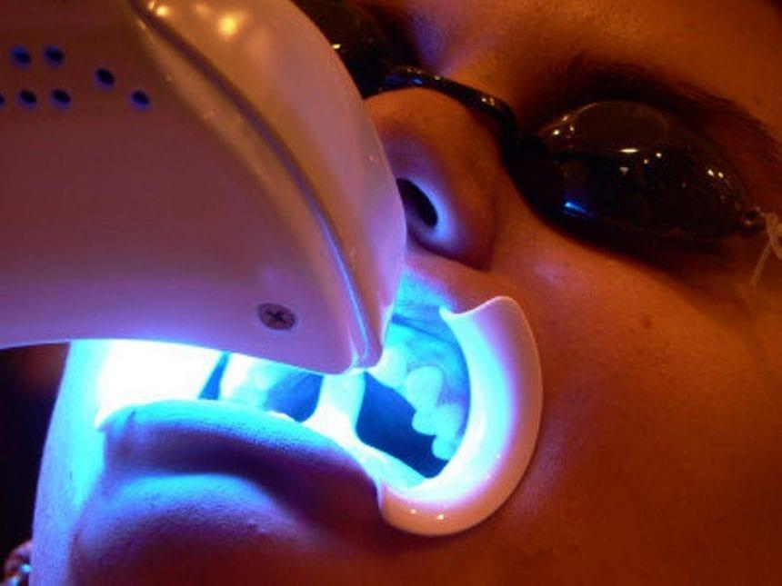 Clareamento a laser