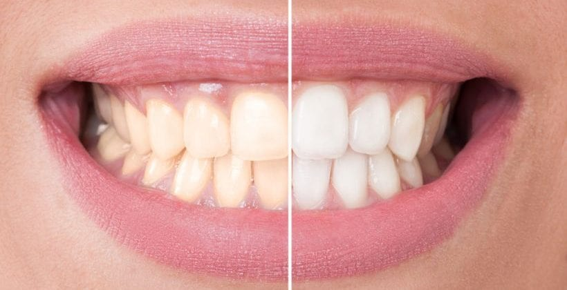 7 mitos sobre o clareamento dental