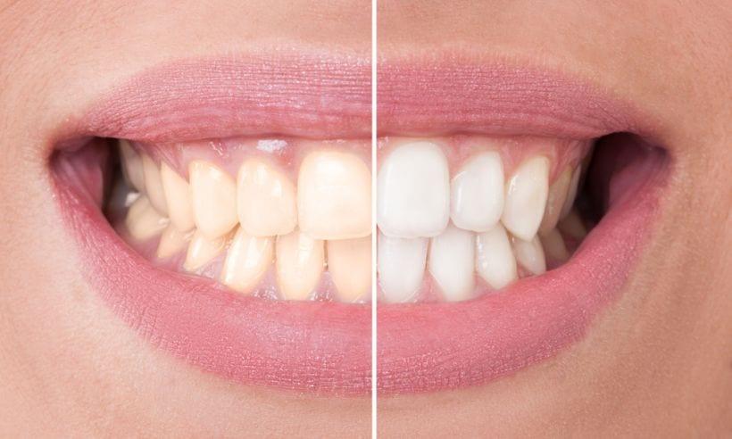 7 mitos sobre o clareamento dental